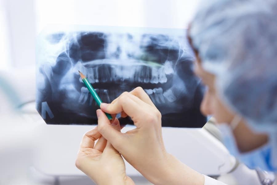 Oralchirurgie Zahnarzt Nürnberg